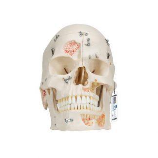 Deluxe mänsklig tandvårdsdemonstration kraniummodell, 10 delar
